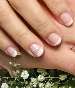 Лечение ногтей народными средствами