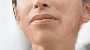 Почему появляются пигментные пятна на лице